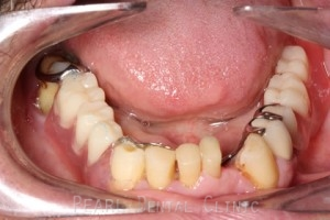 Lower chrome-valplast with hybrid denture