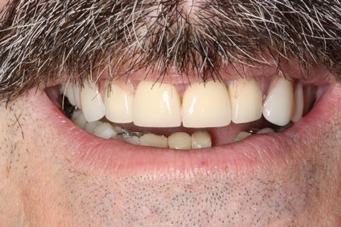 Restored worn down teeth with crowns