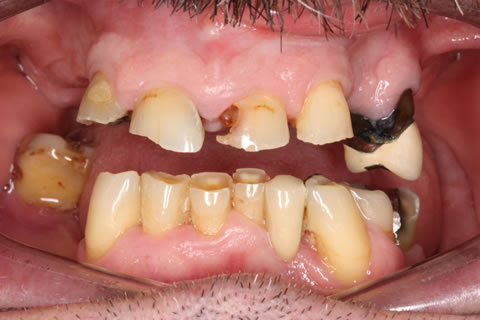 Worn down teeth with gaps