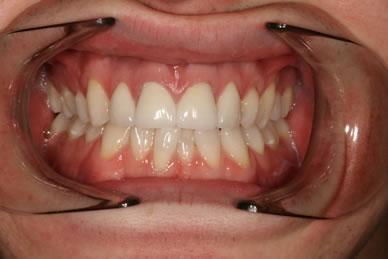 Emax Porcelain Veneers After - Full arch Emax veneers teeth
