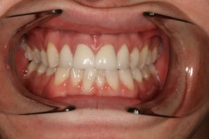 Emax Porcelain Veneers After - Full arch Emax veneers teeth