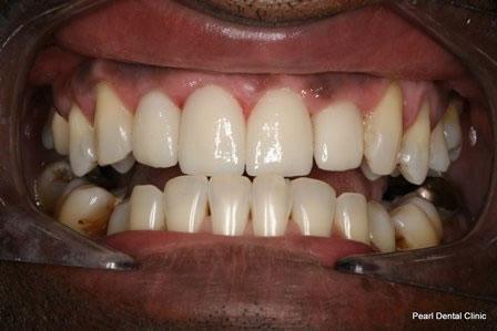 Emax Porcelain Veneers After - Full arch upper_bottom emax veneers teeth