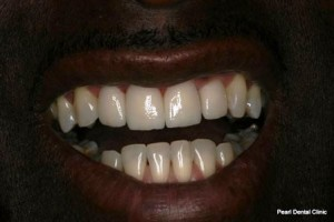 Emax Porcelain Veneers After - Top_Bottom emax veneers teeth