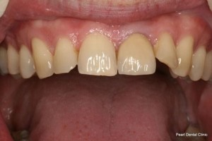 Emax Porcelain Veneers After - Upper front teeth_2