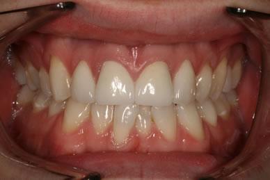 Emax Porcelain Veneers Before After - Full arch Emax veneers teeth
