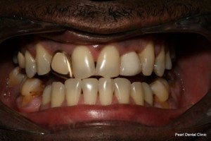 Emax Porcelain Veneers Before After - Top_Bottom teeth