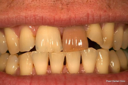 Emax Porcelain Veneers Before - Upper front teeth