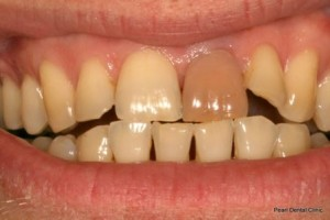Emax Porcelain Veneers Before- Upper front teeth_2