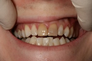 Emax Porcelain Veneers Before - Upper teeth appearance