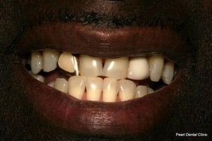 Emax Porcelain Veneers Before - Upper_lower teeth