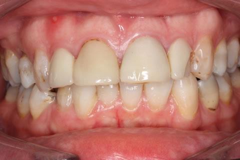 Emax Veneers Before - Full arch top_bottom teeth