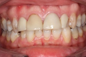 Emax Veneers Before - Full arch top_bottom teeth