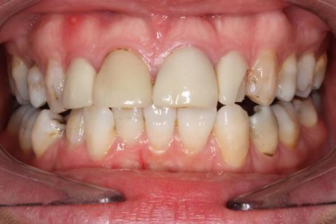 Emax Veneers Before - Full arch upper_lower teeth