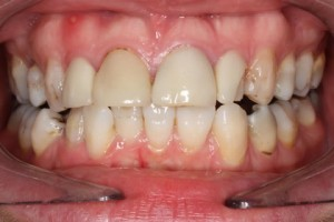 Emax Veneers Before - Full arch upper_lower teeth