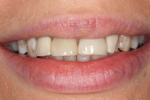 Emax Veneers Before - Full smile