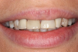 Emax Veneers Before - Full smile