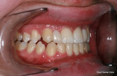 right side missing teeth after treatment