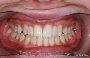 front missing teeth after treatment