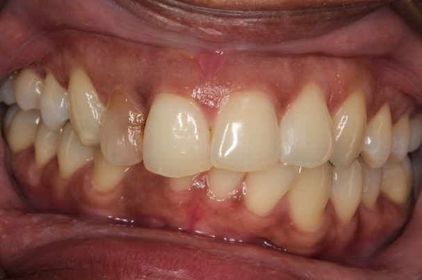 Invisalign at Pearl Dental Clinic