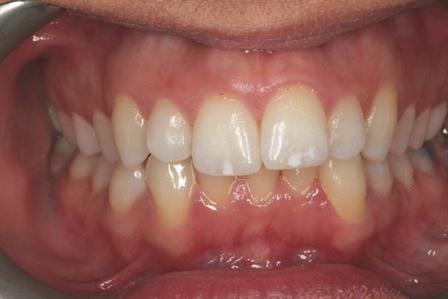 smile images before invisalign