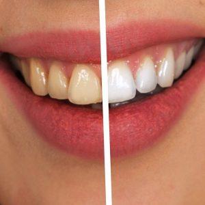 Zoom Dental Treatment