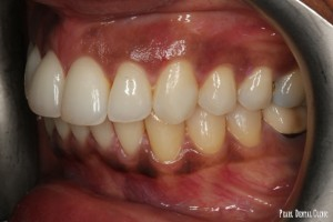 Invisalign buccal left after