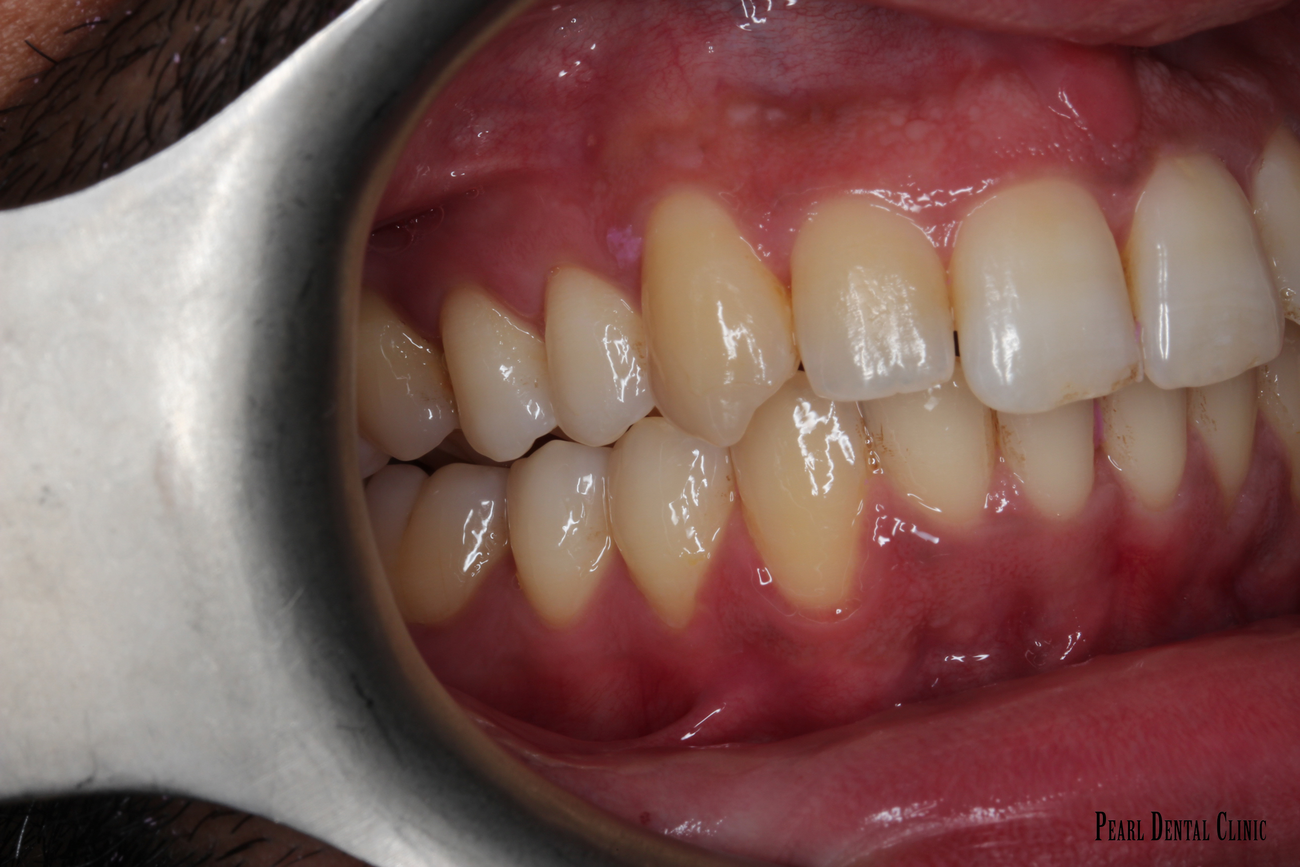 Invisalign Left After