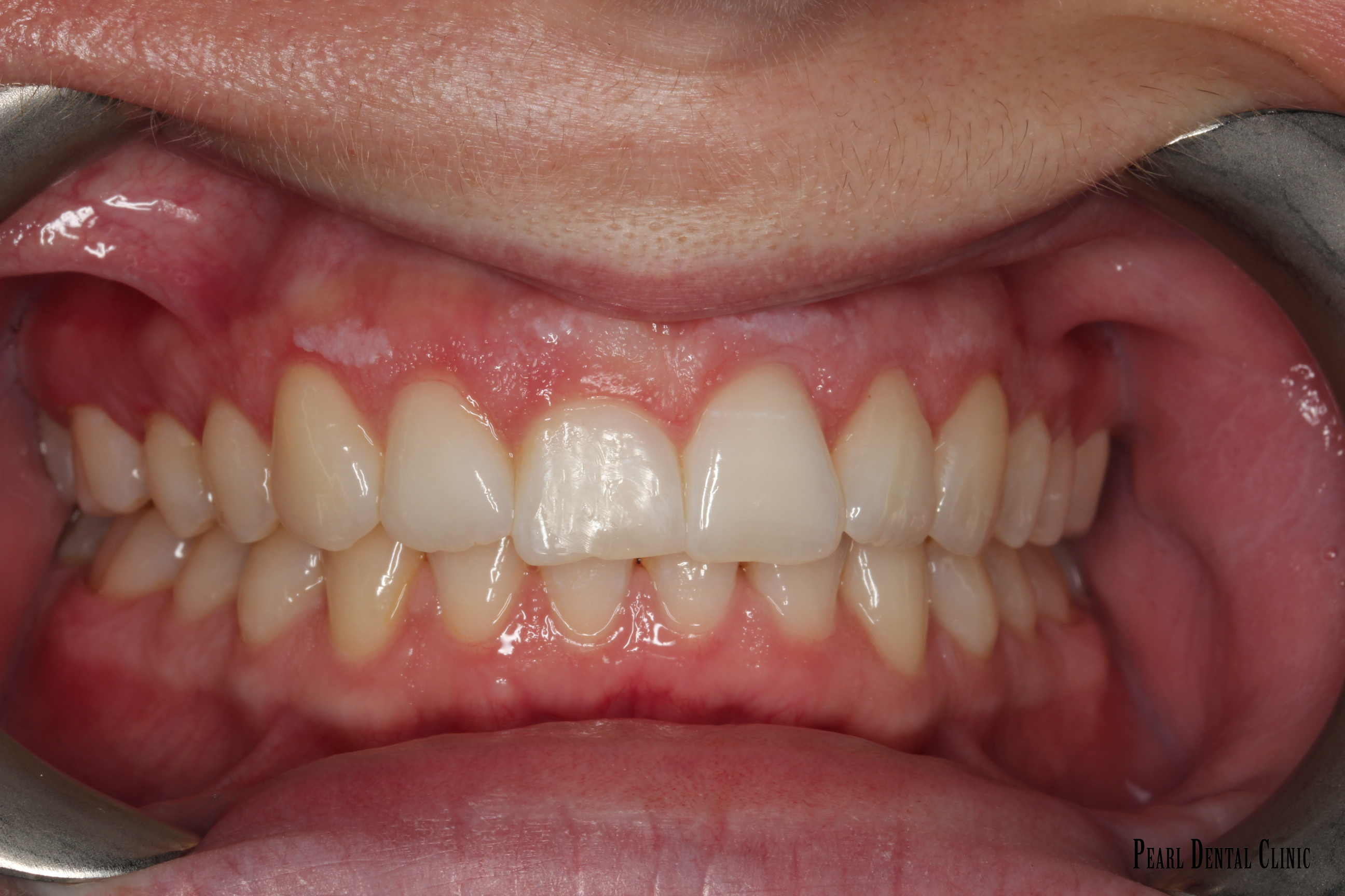 Invisalign Anterior after