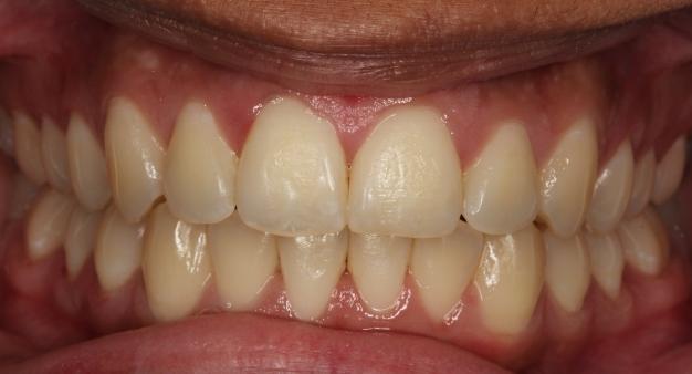 clear braces after treatment 1
