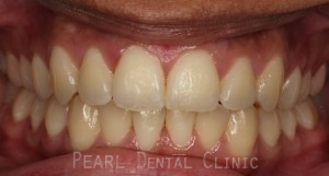 clear braces after treatment 1