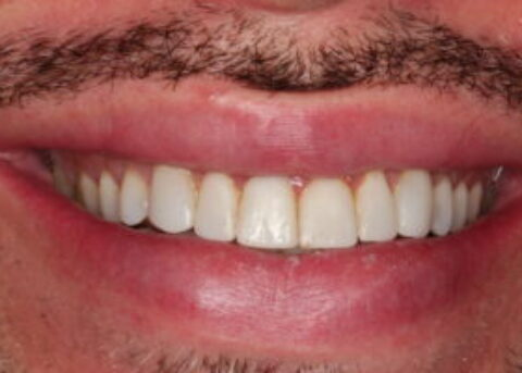 6 composite veneers smile