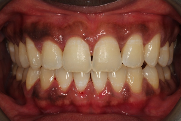 after invisalign gap is closed