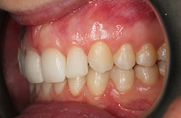 Invisalign Gallery 14 Cases By Invisalign Dentist