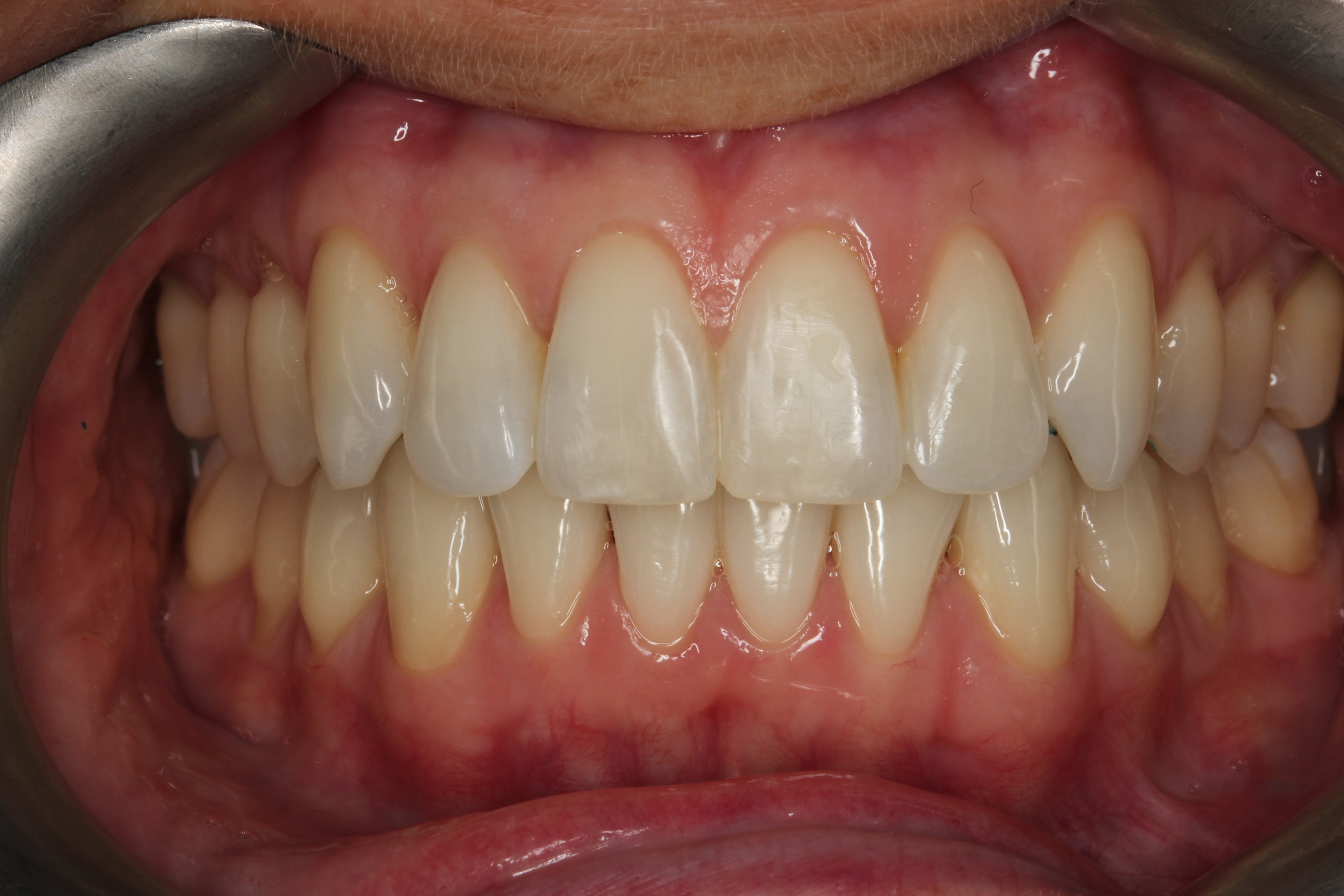 front smile after invisalign