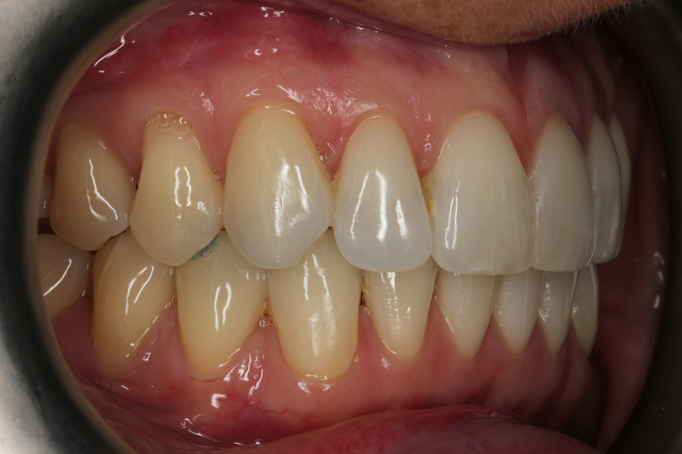 right side after invisalign