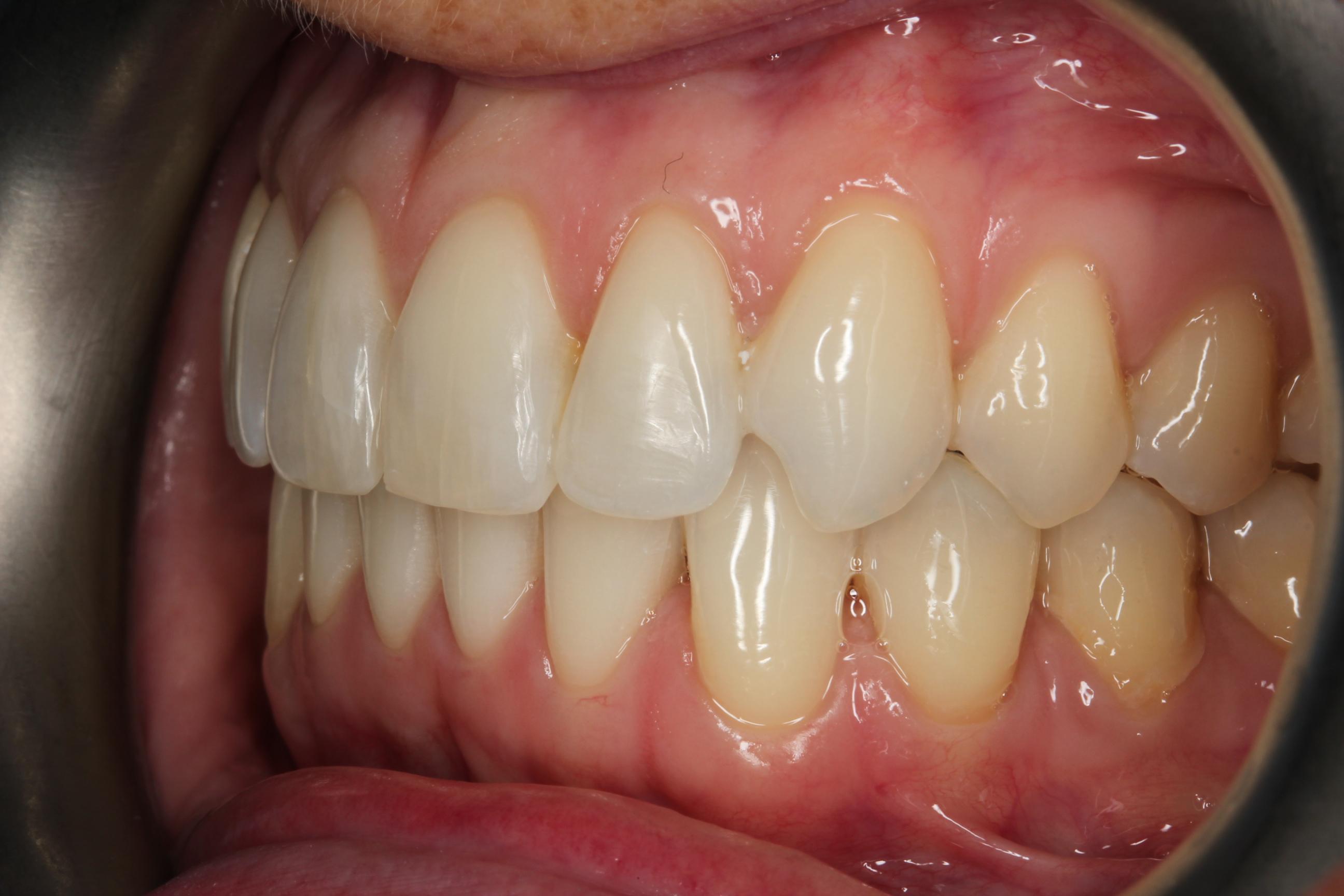 left side after invisalign