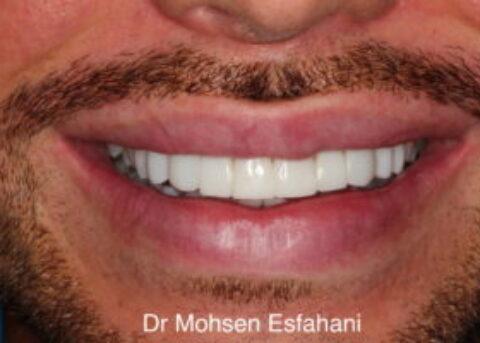 ten composite veneers smile
