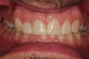 front smile after composite veneer