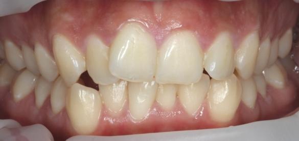 clear braces before treatmetn