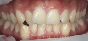 clear braces before treatmetn