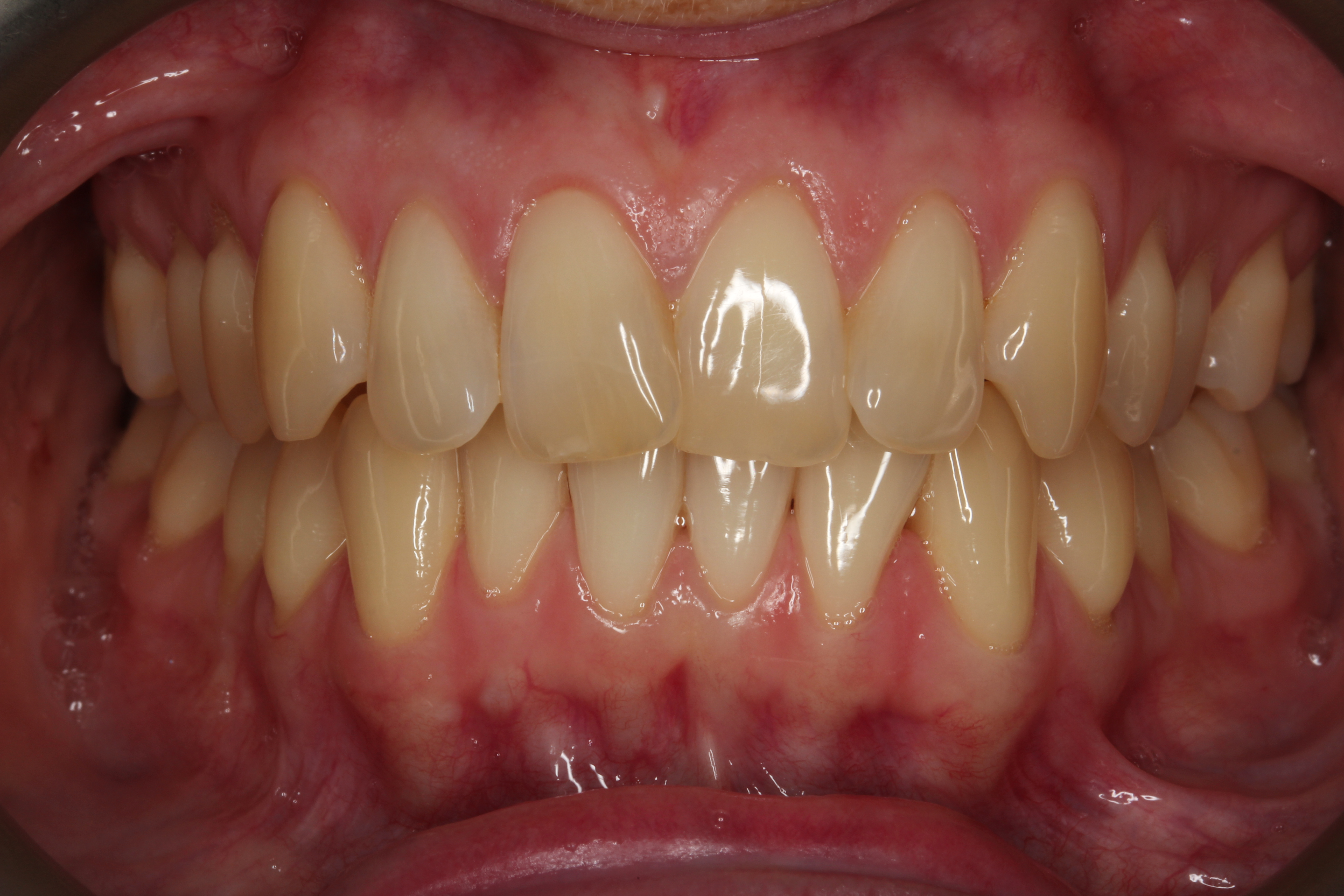 front smile before invisalign
