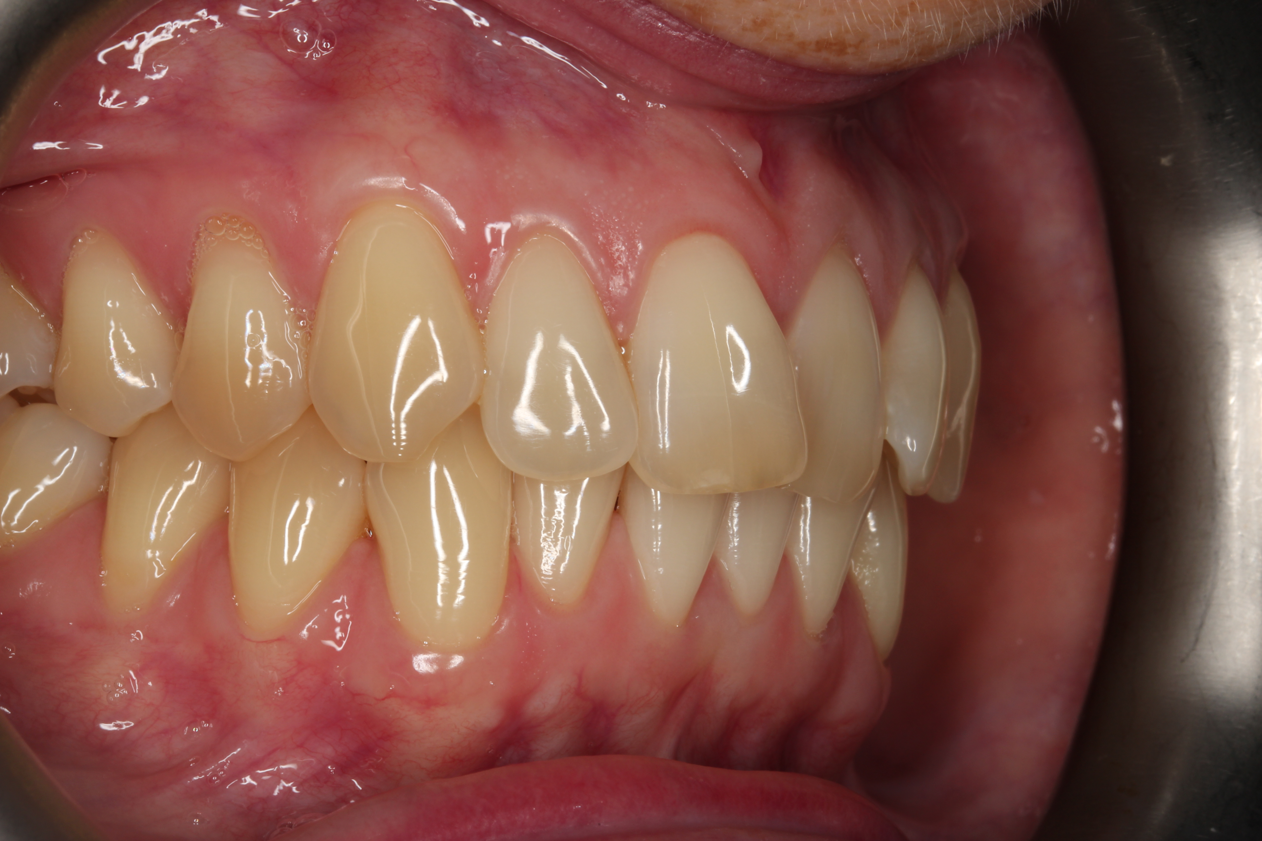 right side before invisalign