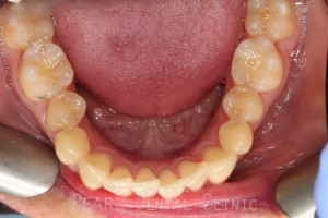 lower arch before invisalign