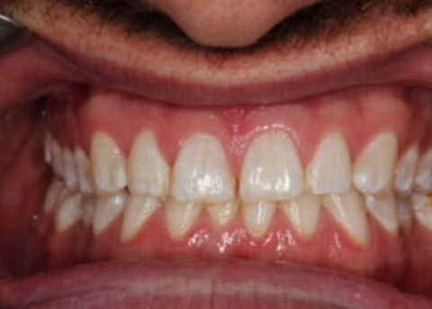 gappy teeth