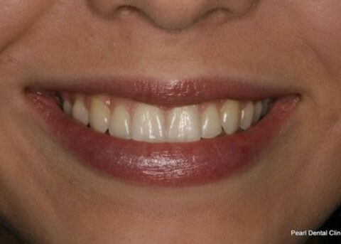 After Image - Invisalign