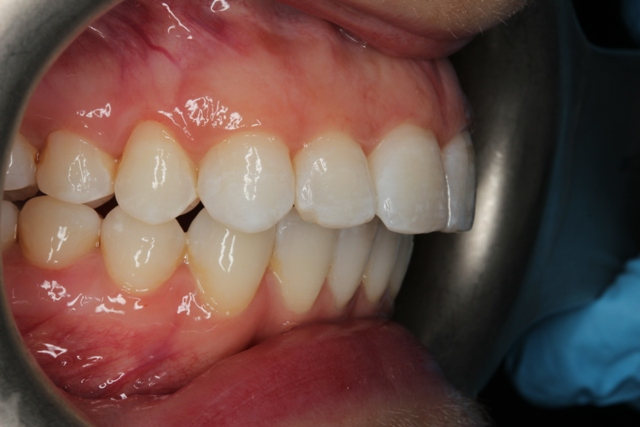 Invisalign Gallery 18 Cases By Invisalign Dentist