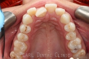 upper arch after invisalign