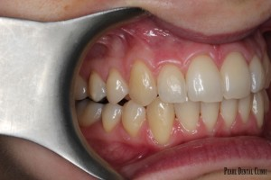 Invisalign Buccal Right After