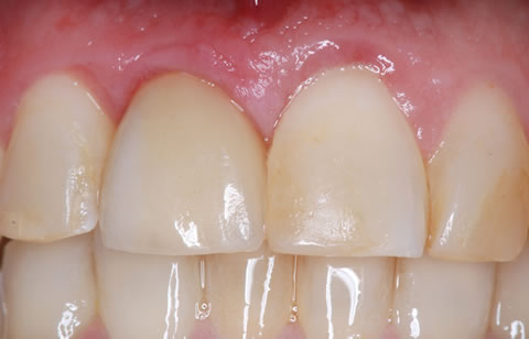 Bonded crown implant abutment