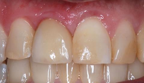 Crown implant_gum contouring